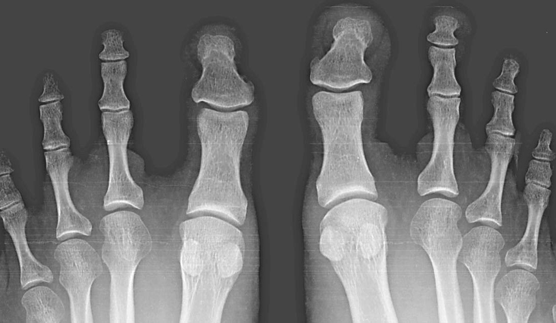 Hammer Toe and Your Pain