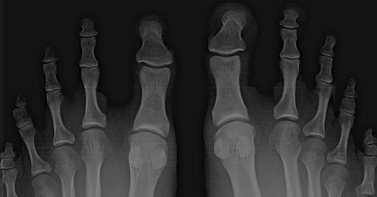 hammer toe question